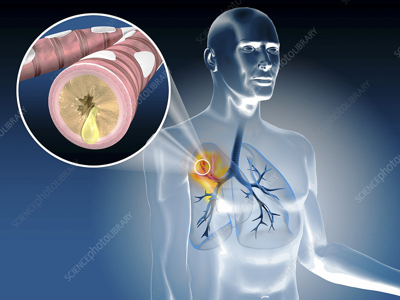 Illustration of bronchitis