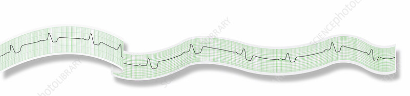ECG, illustration