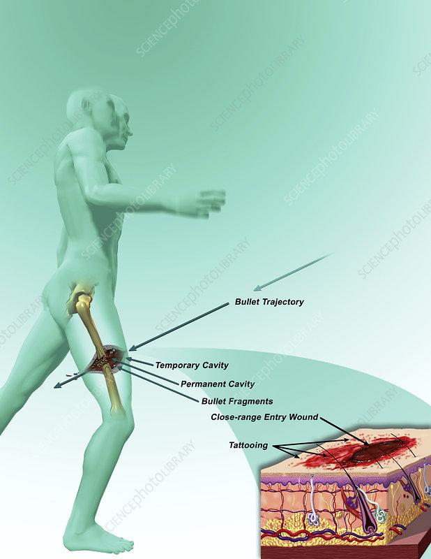 Gunshot injury, illustration
