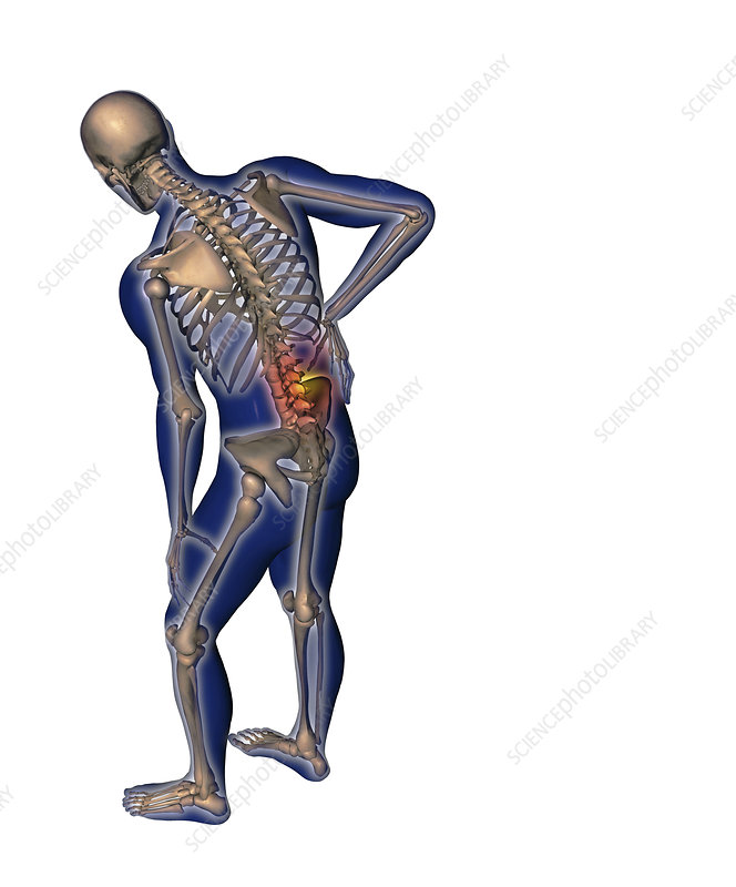 Human back pain, illustration