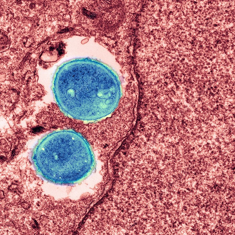 Distinguishing deadly Staph bacteria from harmless strains
