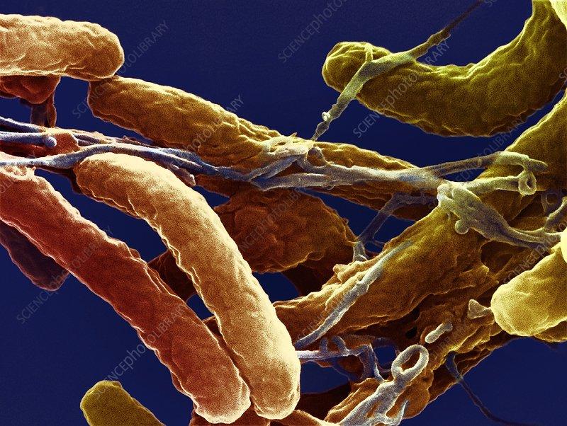 Cholera bacteria, SEM