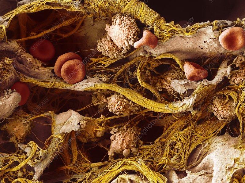 Cells in lung tissue, SEM