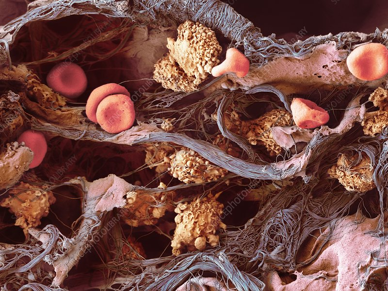 Cells in lung tissue, SEM