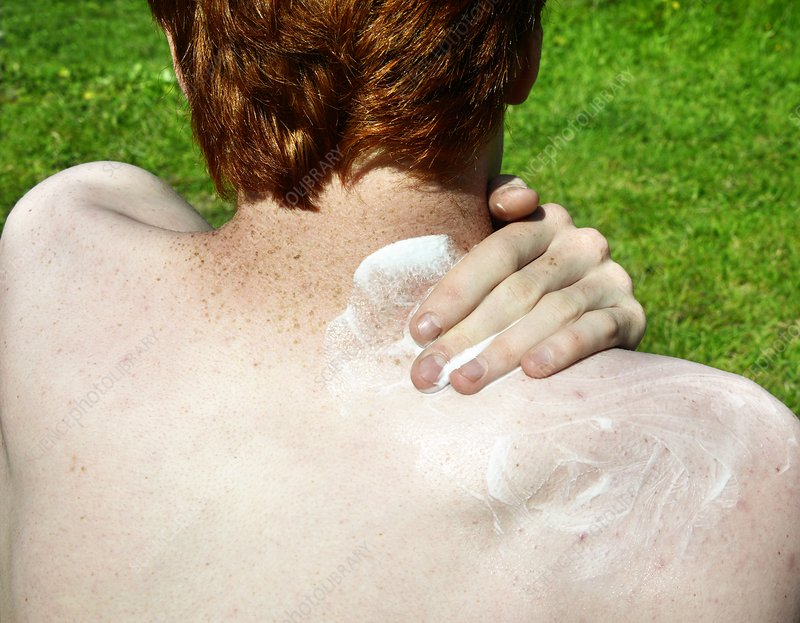 Sunscreen lotion for freckled skin