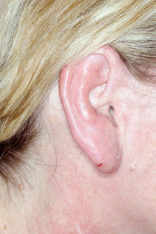 Cellulitis of the ear