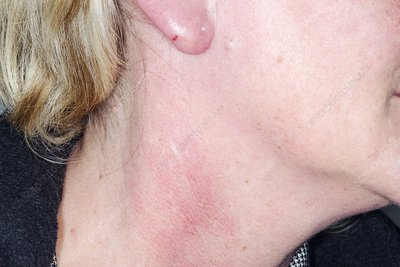 Cellulitis of the ear and neck