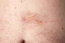 Morphea on abdomen