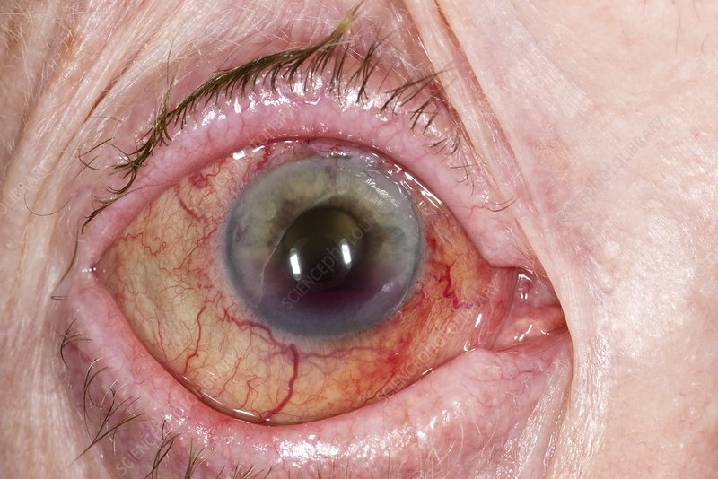 Eye after treatment for glaucoma