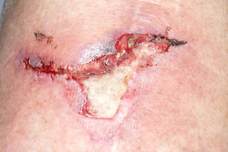 Infected knee laceration