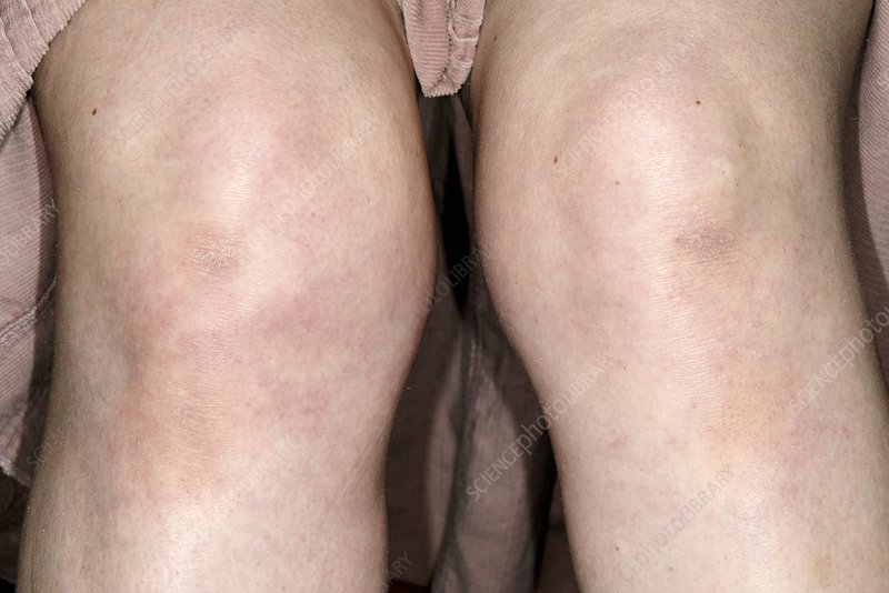 Dislocated knee in hypermobility