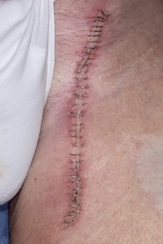 Infected surgical wound