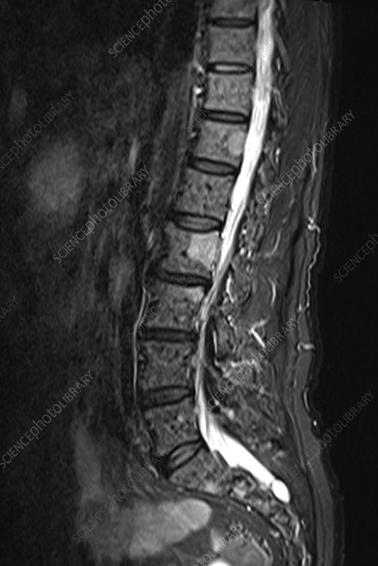 Multiple myeloma of the spine, MRI