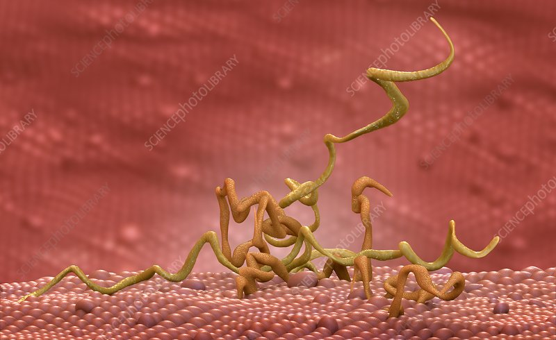 Syphilis infection, illustration