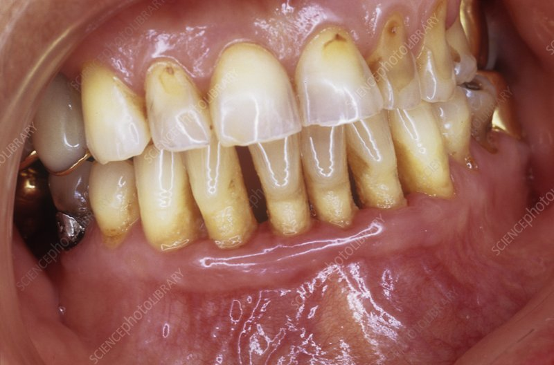 Receding gums in gum disease