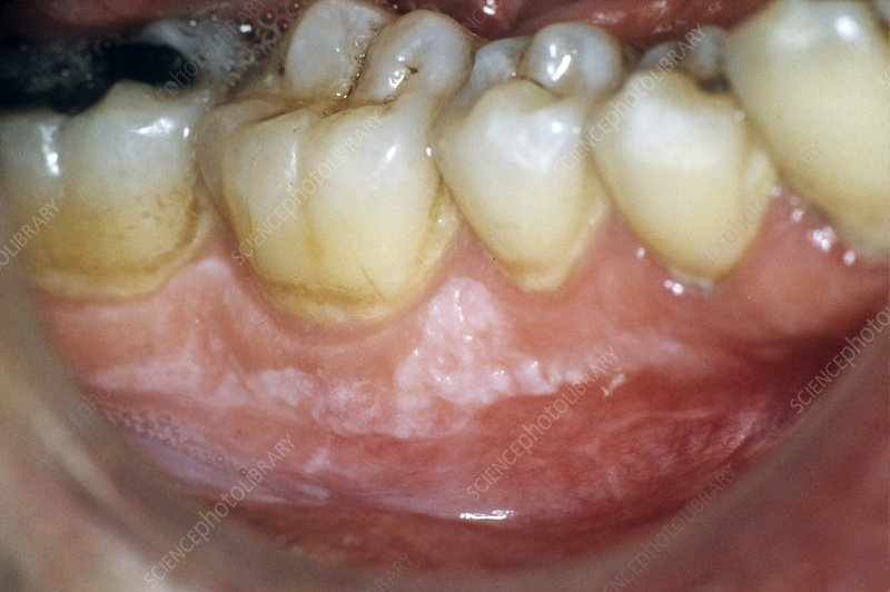 Leukoplakia of the gums