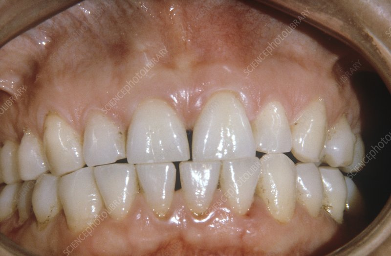 Dental abrasion