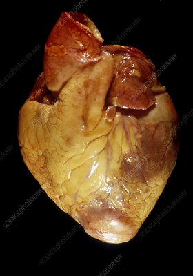 Cardiac amyloidosis