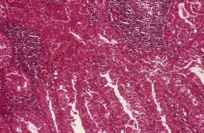 Salivary gland tumour, light micrograph