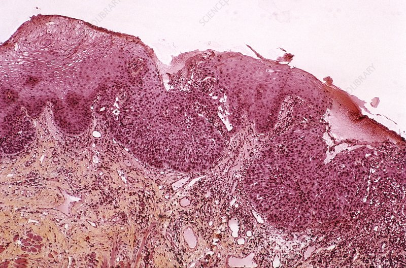 Mouth cancer, light micrograph