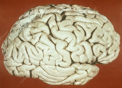Brain in Sturge-Weber syndrome