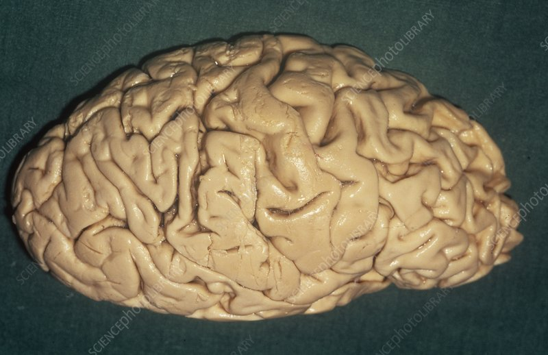 Brain in Pick's disease