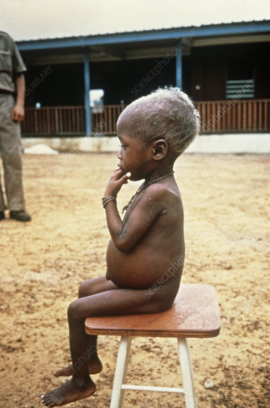 Child with kwashiorkor