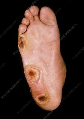 Foot ulcers in diabetes