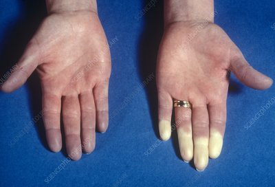 Raynaud's phenomenon in the fingers