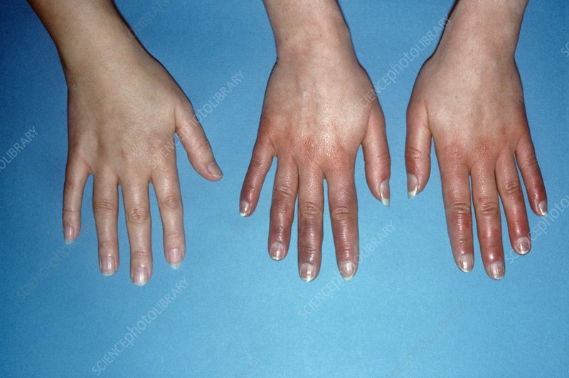 Acrocyanosis of the hands