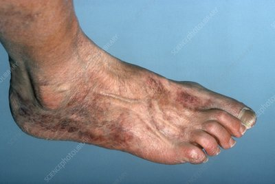Ischemia of the foot