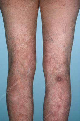Spider veins of the legs