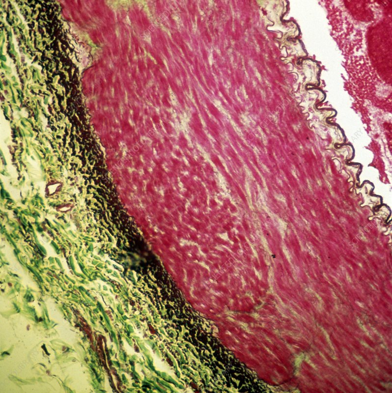 Artery wall, light micrograph