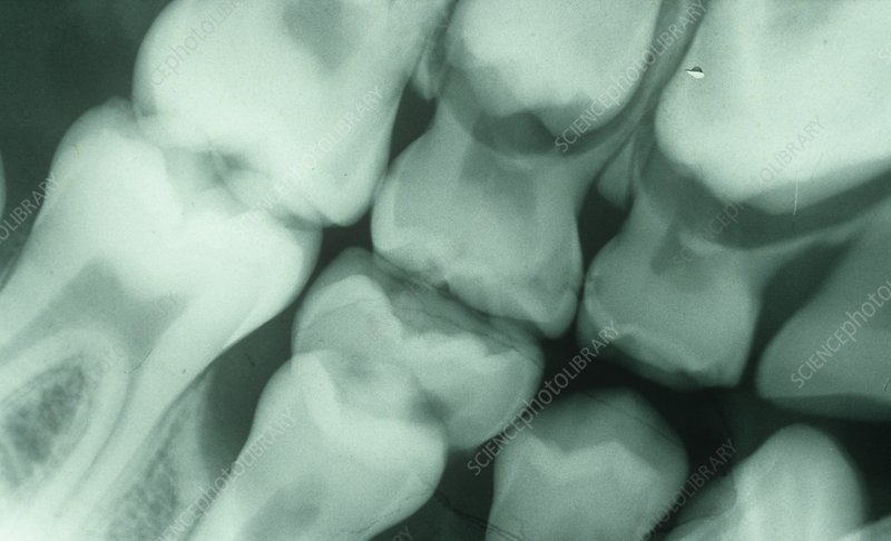 Dental X-ray, 6-year-old child