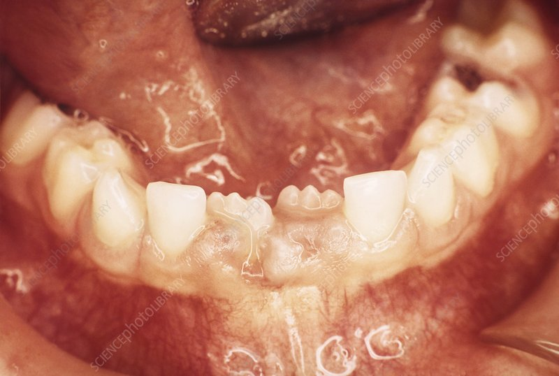 New teeth erupting, 7-year-old child