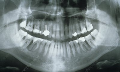 Dental X-ray showing fillings