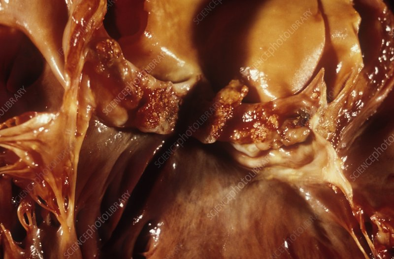 Growths on heart valve