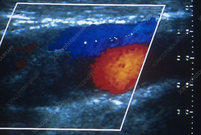 Thrombosed carotid artery, ultrasound