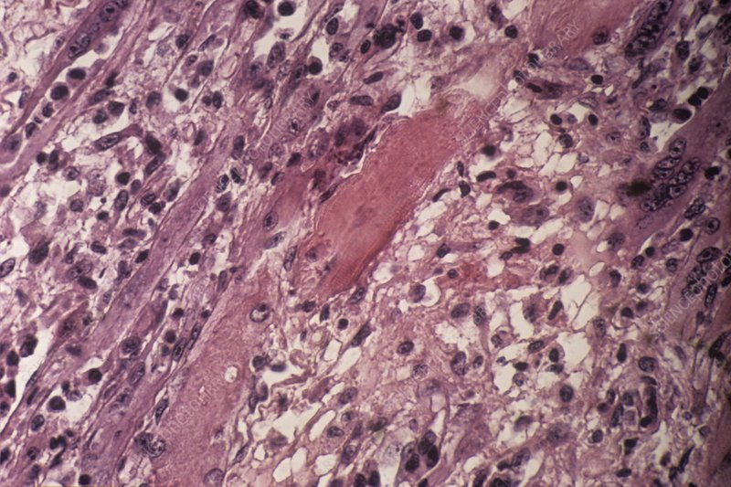 Damaged muscle tissue, light micrograph