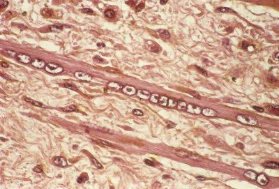 Muscle wasting in cancer, micrograph