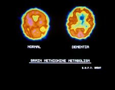 Brain in Alzheimer's disease, PET scan