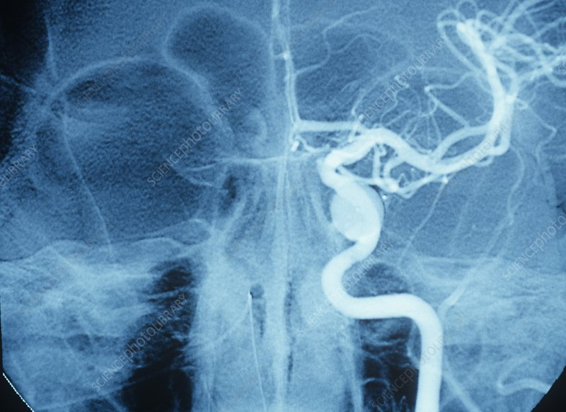 Treated carotid-cavernous fistula, X-ray