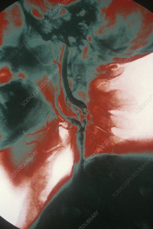 Carotid atherosclerosis, X-ray