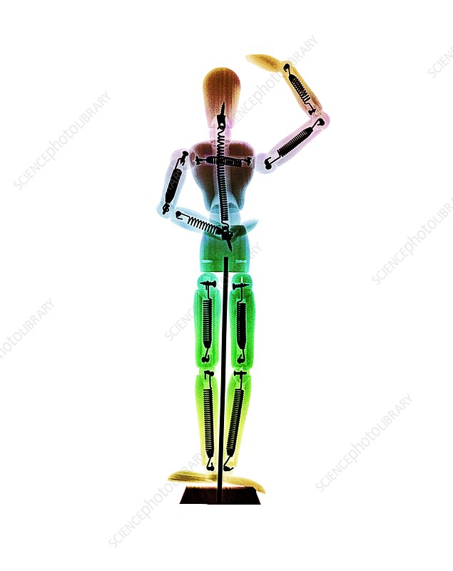 Dancing toy, X-ray