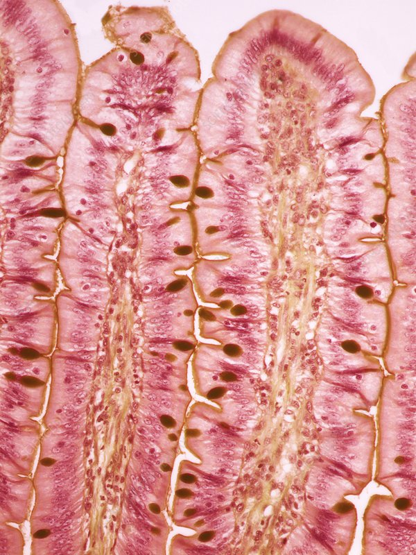 Small intestine, light micrograph