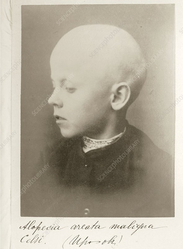 9 year old boy with alopecia, 1890