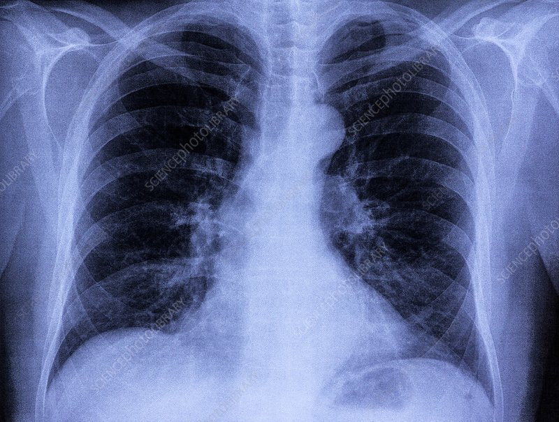 Lungs and heart, chest X-ray