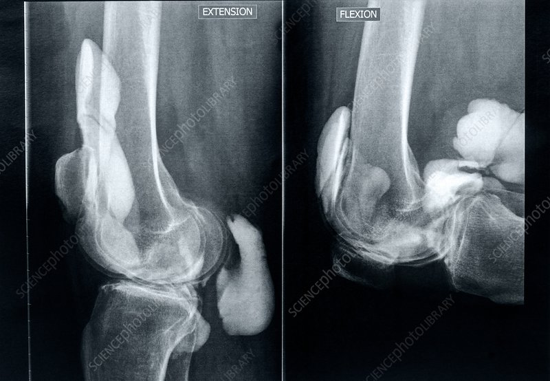 Knee extension and flexion, X-rays