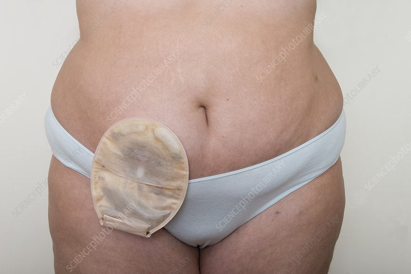 Young woman wearing ileostomy bag