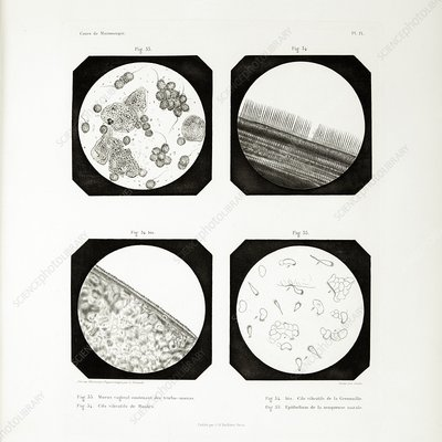 First ever photomicrographs, 1845